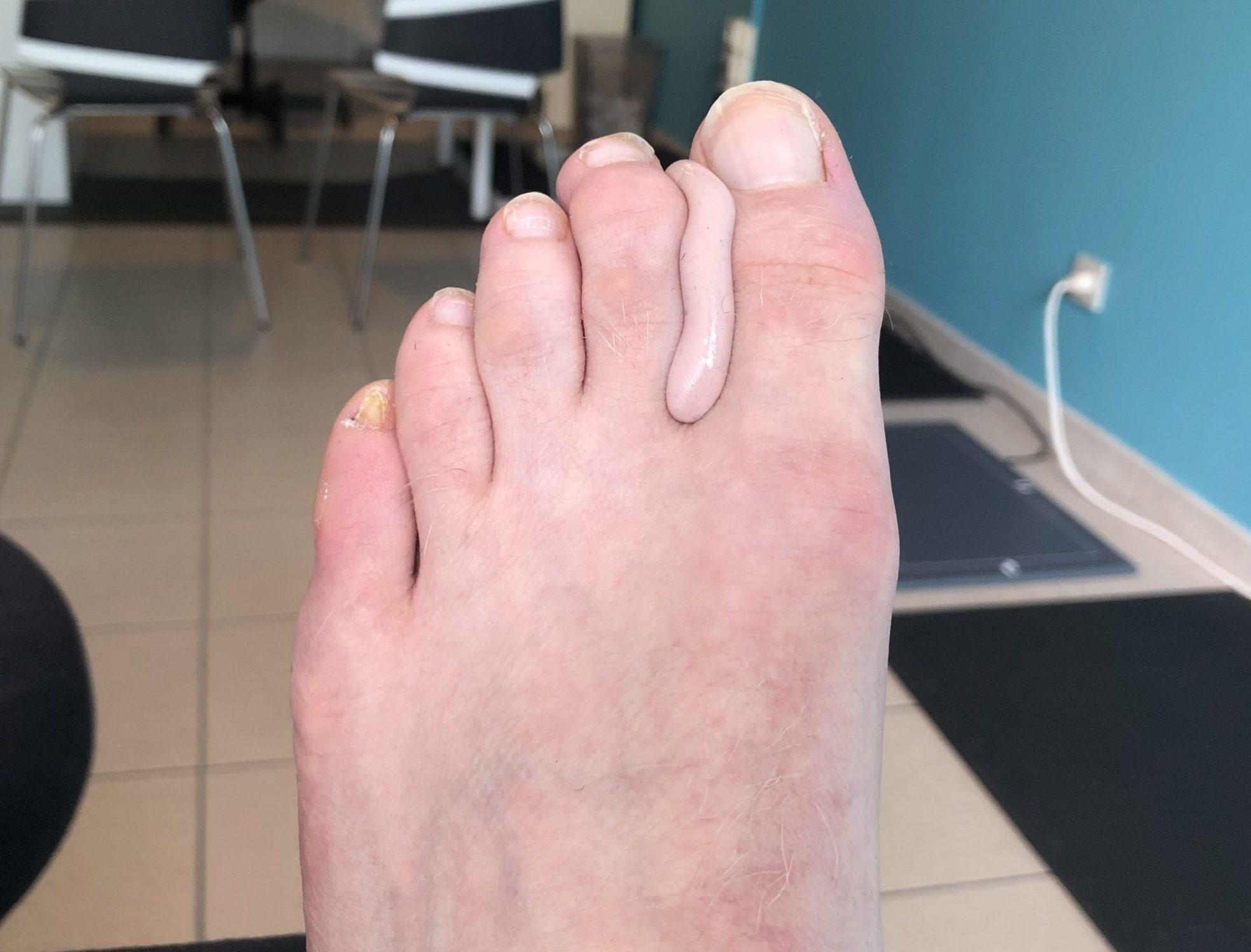 silicone orthese tussen tenen
