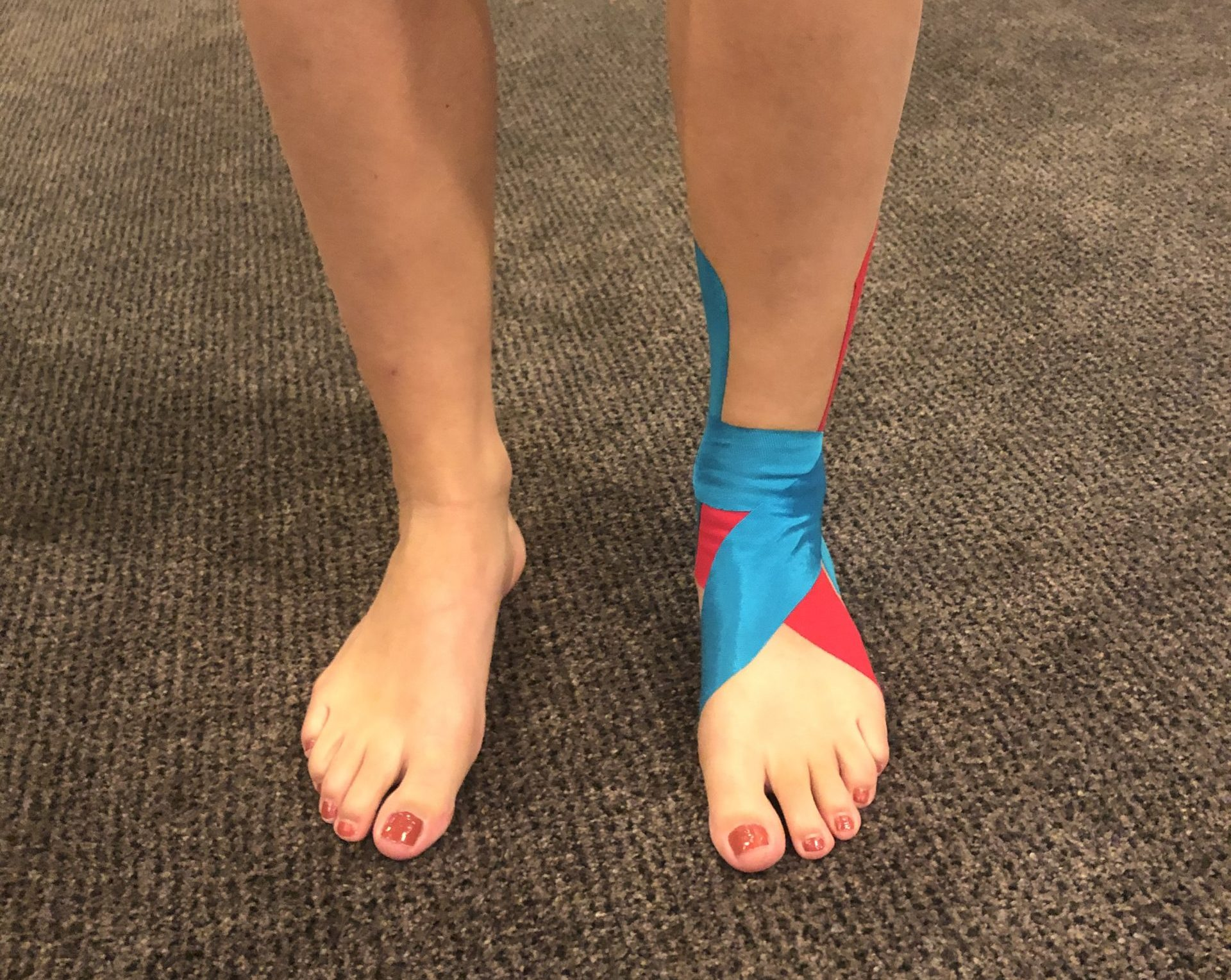 medical taping lochristi